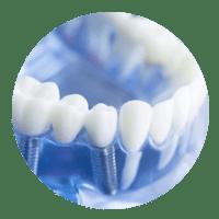 Implantologie Köln: Schnell, sicher und gewebeschonend