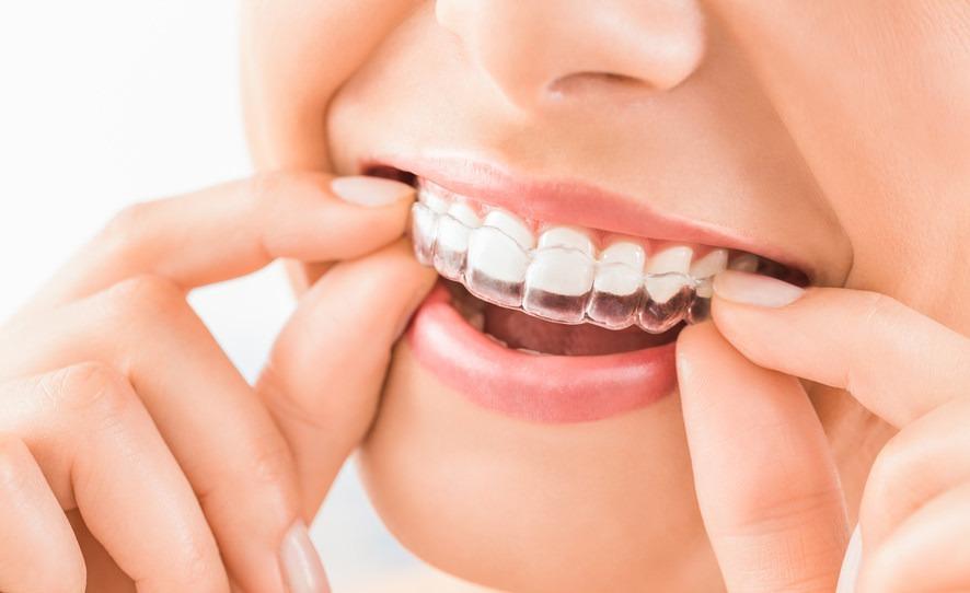Implantologie Köln: Aufbissschienen von Zahnarzt Dr. Narouz