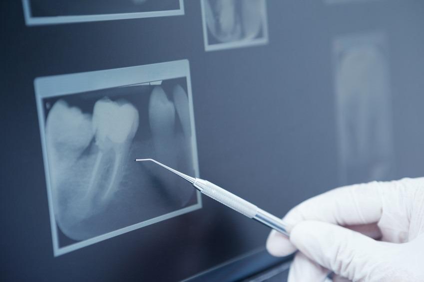 Implantologie Köln: Digitales Röntgen von Zahnarzt Dr. Narouz