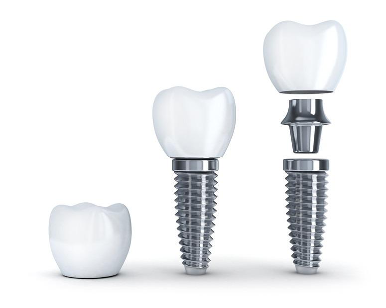 Implantologie Köln: Implantate von Zahnarzt Dr. Narouz