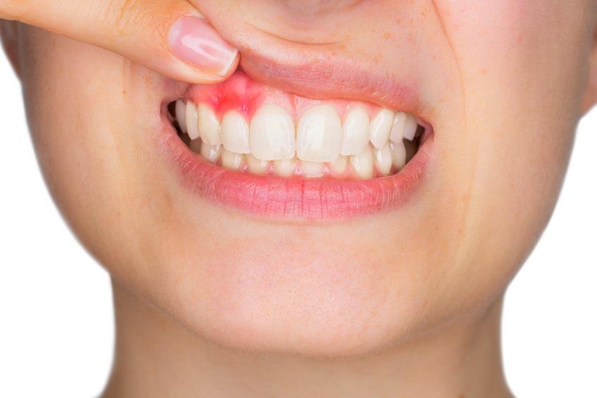 Implantologie Köln: Parodontitis-Behandlung von Zahnarzt Dr. Narouz