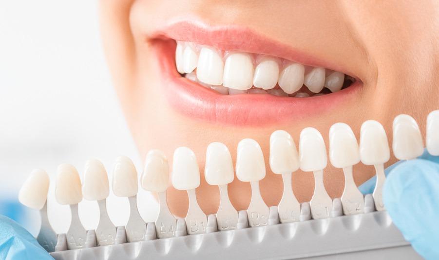 Implantologie Köln: Zahnersatz von Zahnarzt Dr. Narouz
