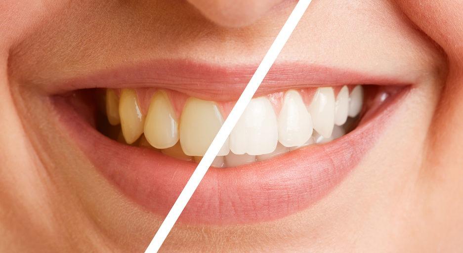 Implantologie Köln: Professionelle Zahnreinigung von Zahnarzt Dr. Narouz
